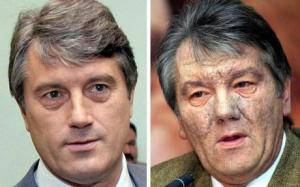 Ukraine is hard on politicians. Viktor Yushchenko before being 2004 in 2004, and after.